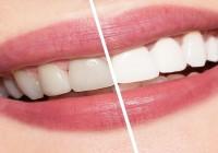 Avantajele folosirii benzilor de albire a dintilor