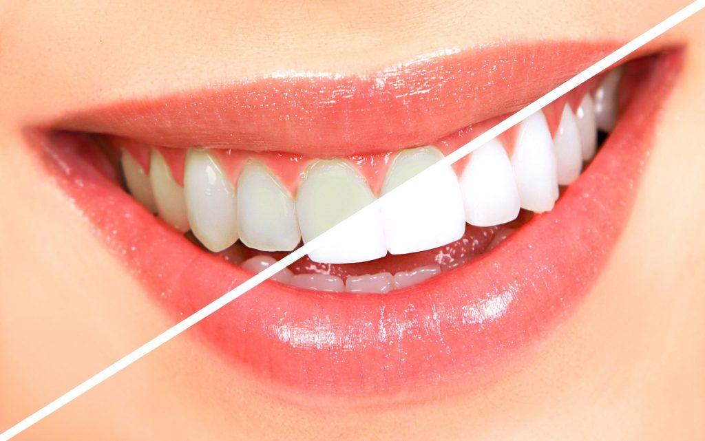 Cum se obtine albirea dintilor?